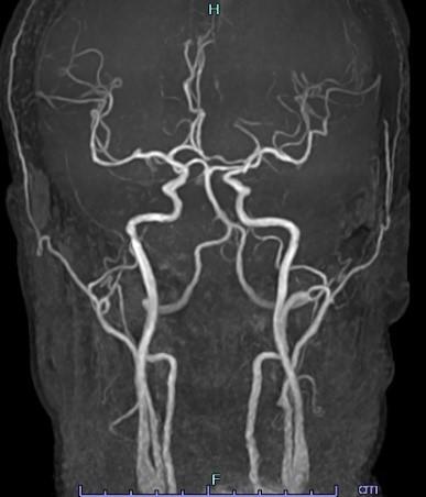 MRI検査 頭頚部MRA