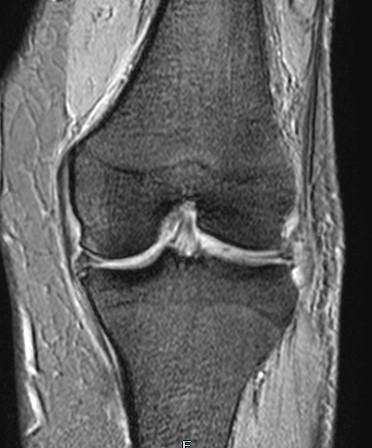 MRI検査 膝関節