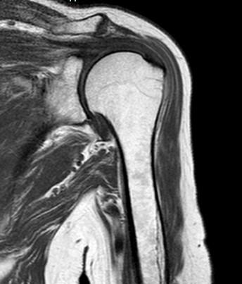 MRI検査 肩関節