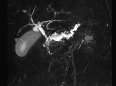 MRI検査 腹部MRI(MRCP)